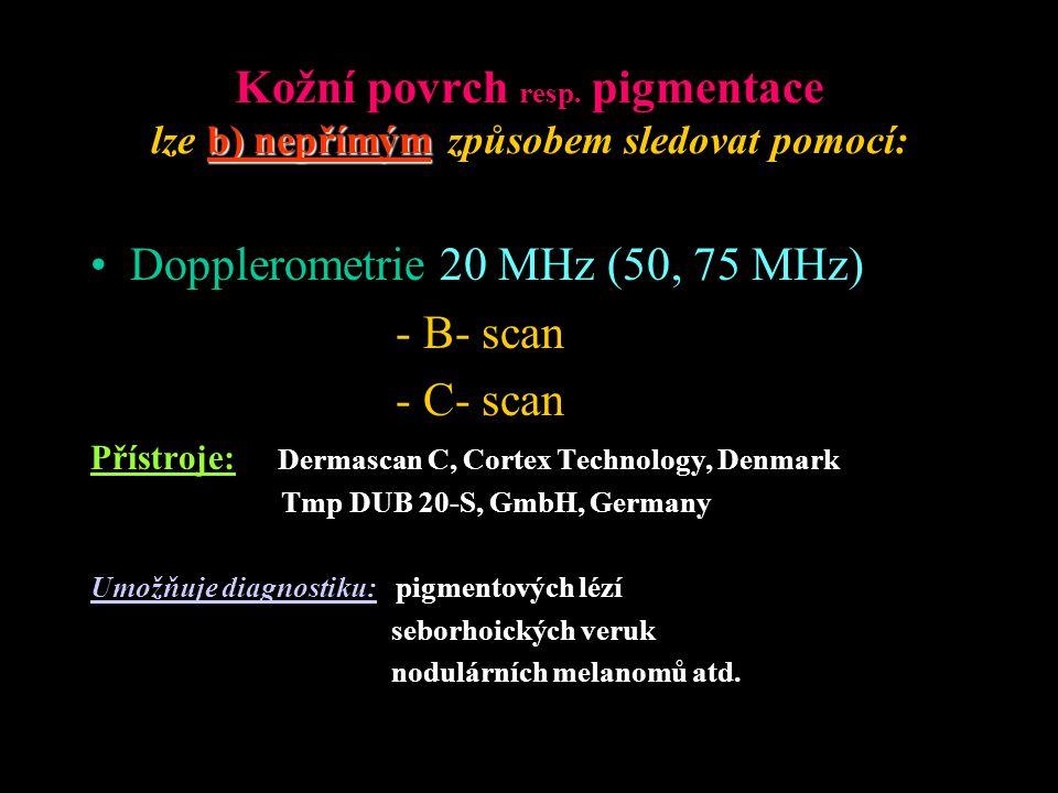 Dopplerometrie 20 MHz (50, 75 MHz) - B- scan - C- scan