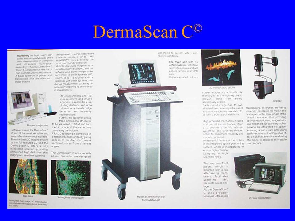DermaScan C©