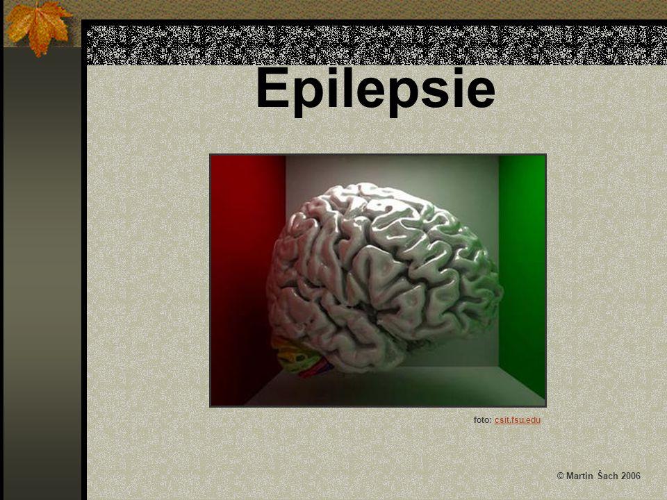 Epilepsie foto: csit.fsu.edu © Martin Šach 2006