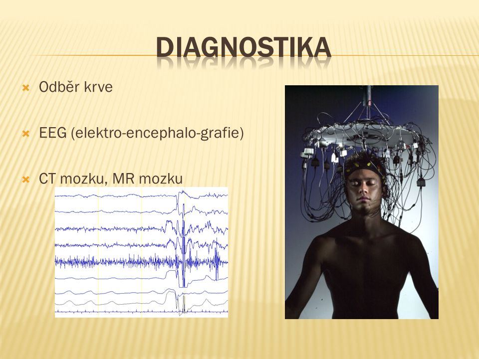 DIAGNOSTIKA Odběr krve EEG (elektro-encephalo-grafie)