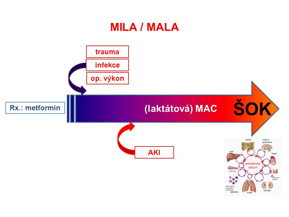 ŠOK MILA / MALA (laktátová) MAC trauma infekce op. výkon