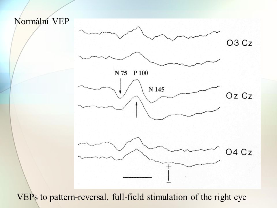 Normální VEP VEPs to pattern-reversal, full-field stimulation of the right eye