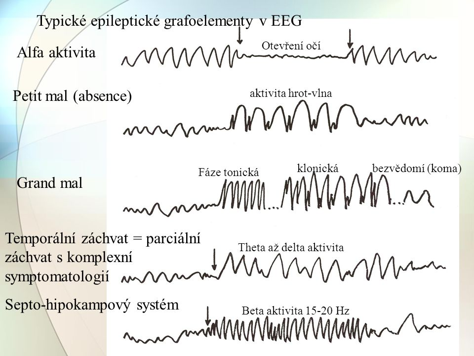 Typické epileptické grafoelementy v EEG