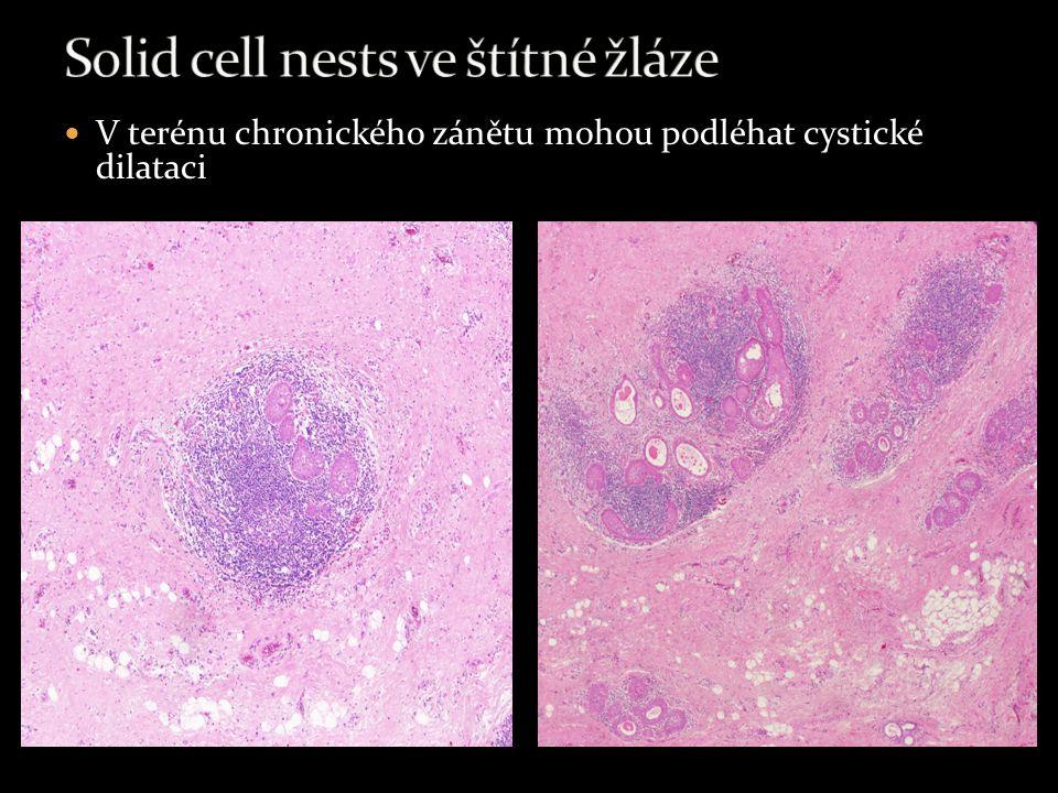 Solid cell nests ve štítné žláze