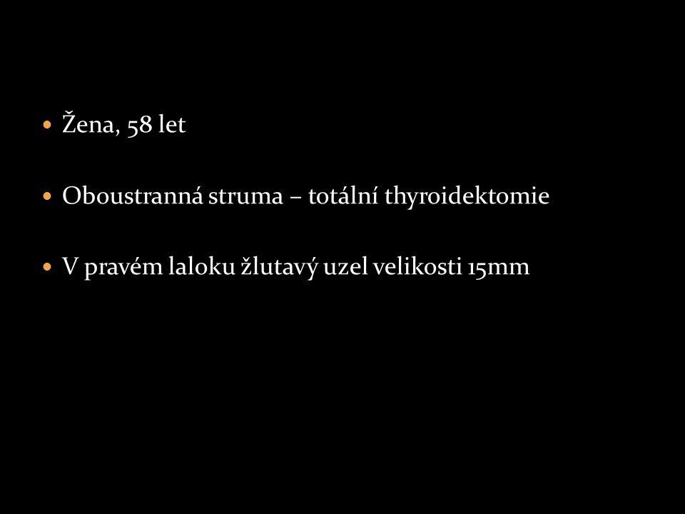 Žena, 58 let Oboustranná struma – totální thyroidektomie.