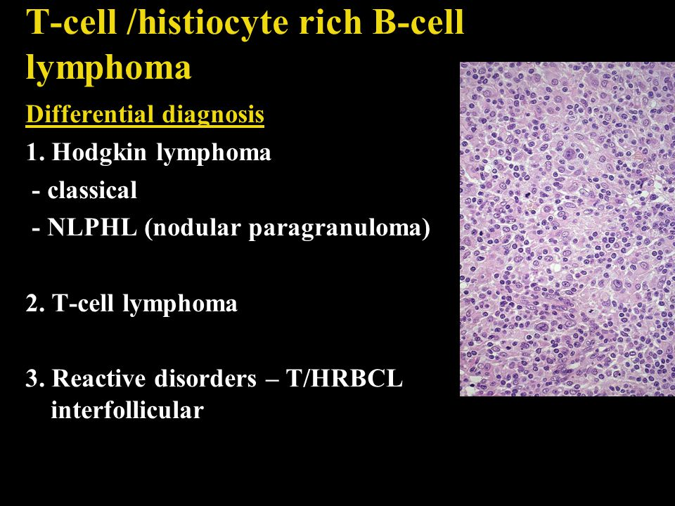 T-cell /histiocyte rich B-cell lymphoma