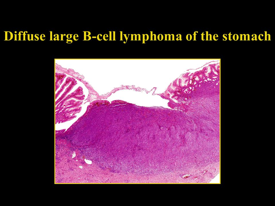 Diffuse large B-cell lymphoma of the stomach