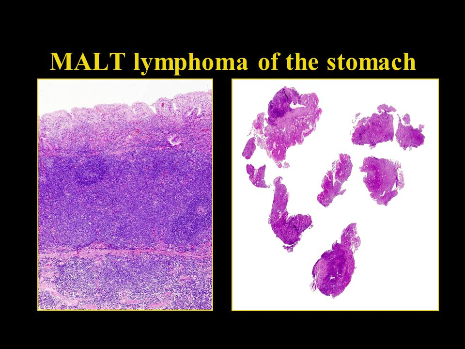 MALT lymphoma of the stomach