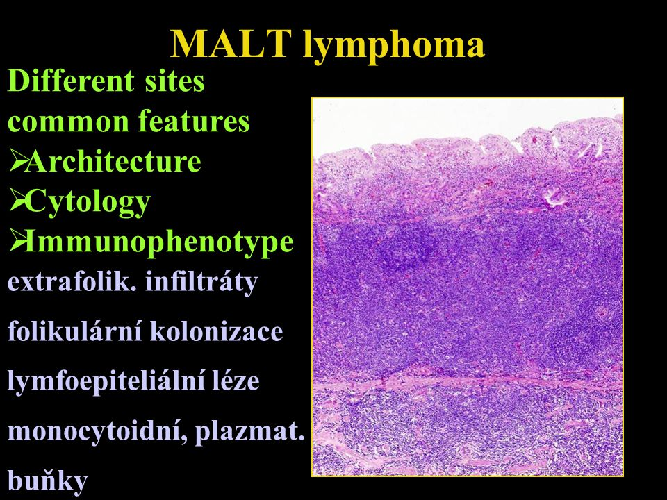 MALT lymphoma Different sites common features Architecture Cytology