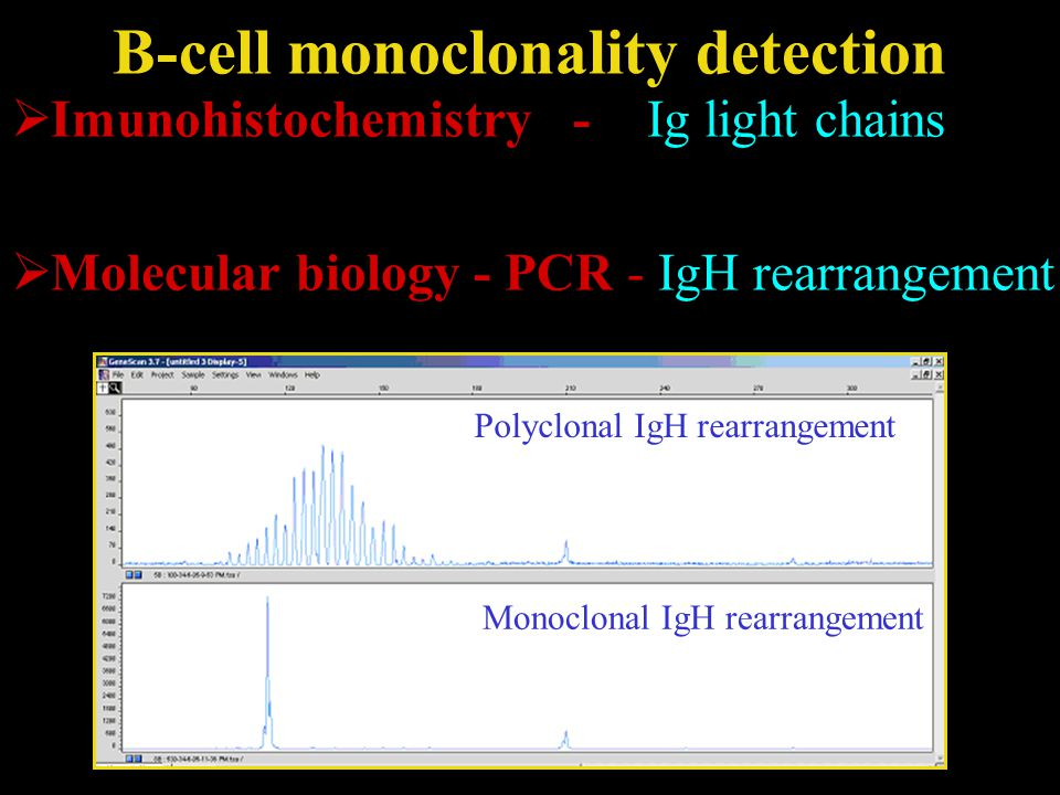 B-cell monoclonality detection