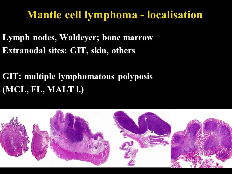 Mantle cell lymphoma - localisation