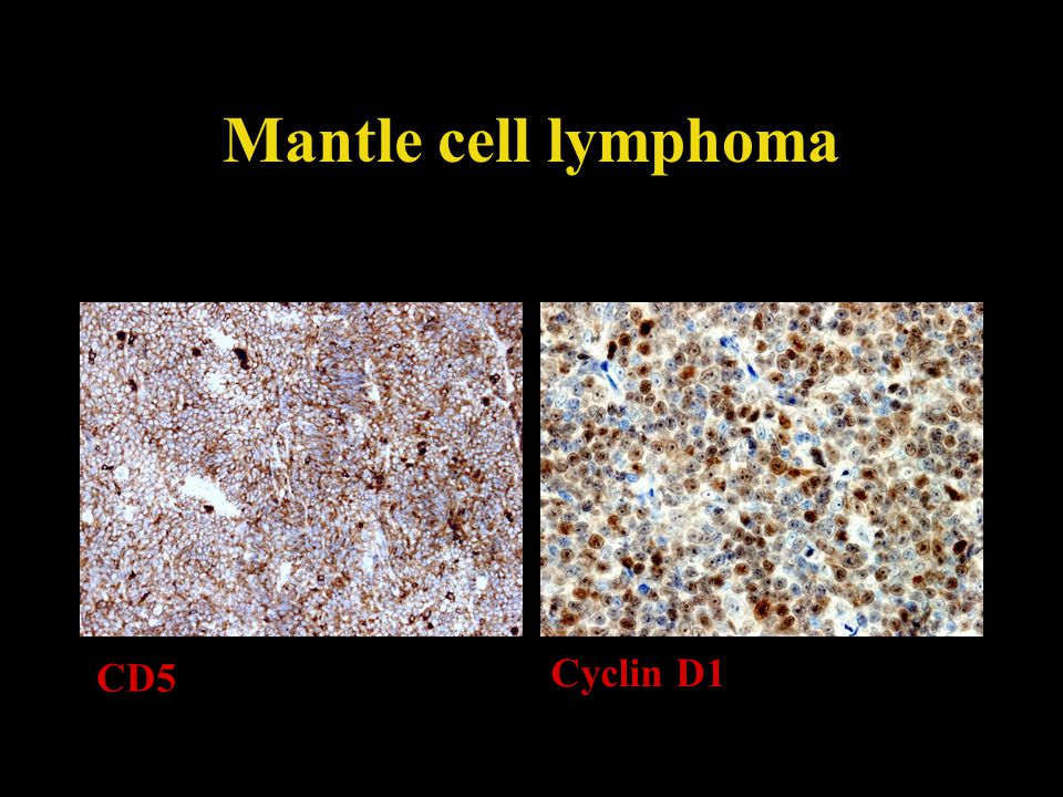 Mantle cell lymphoma CD5 Cyclin D1