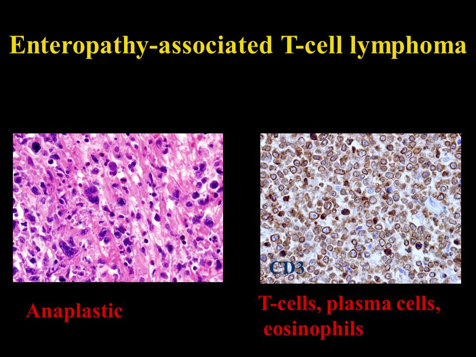 Enteropathy-associated T-cell lymphoma