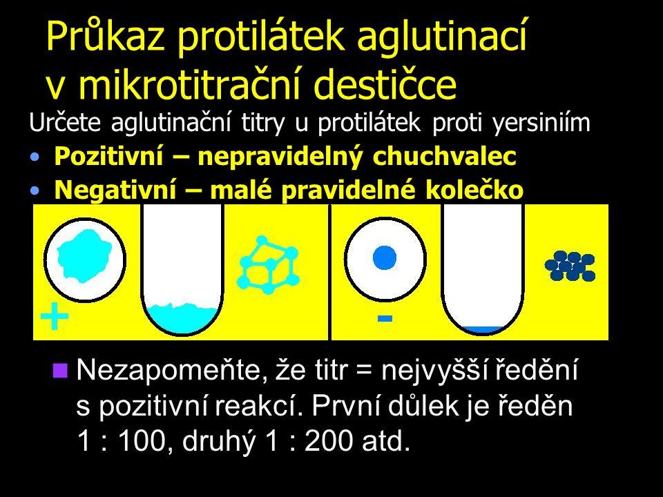 Průkaz protilátek aglutinací v mikrotitrační destičce