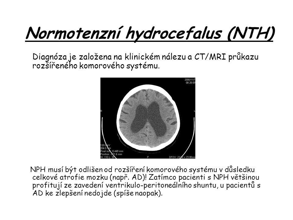 Normotenzní hydrocefalus (NTH)