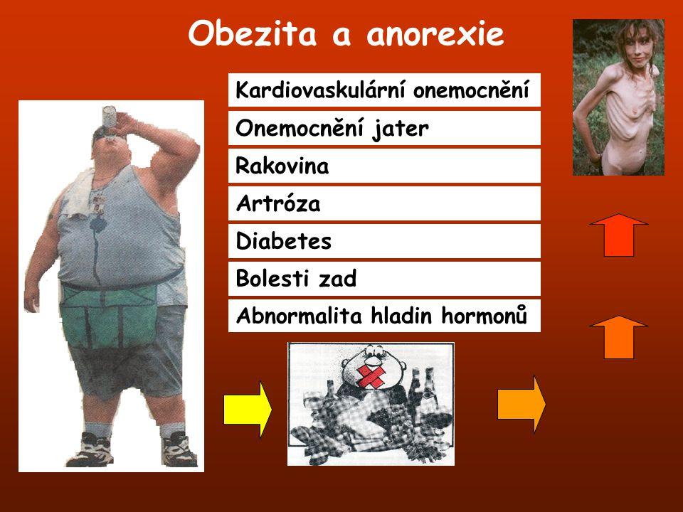 Obezita a anorexie Onemocnění jater Rakovina Artróza Diabetes