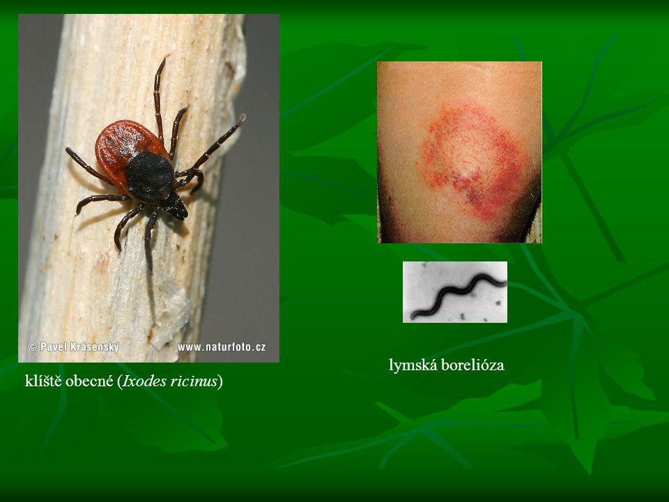 lymská borelióza klíště obecné (Ixodes ricinus)