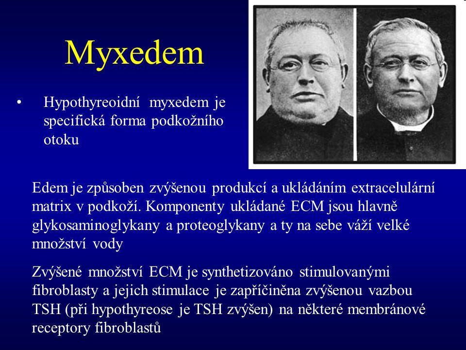 Myxedem Hypothyreoidní myxedem je specifická forma podkožního otoku