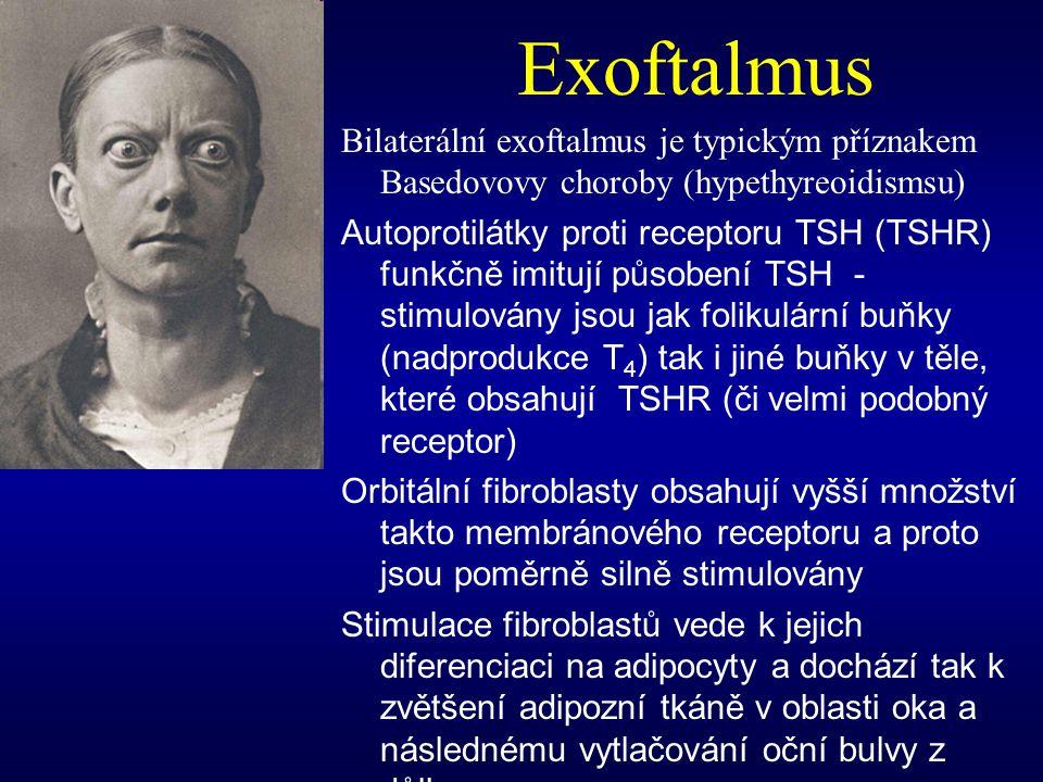 Exoftalmus Bilaterální exoftalmus je typickým příznakem Basedovovy choroby (hypethyreoidismsu)