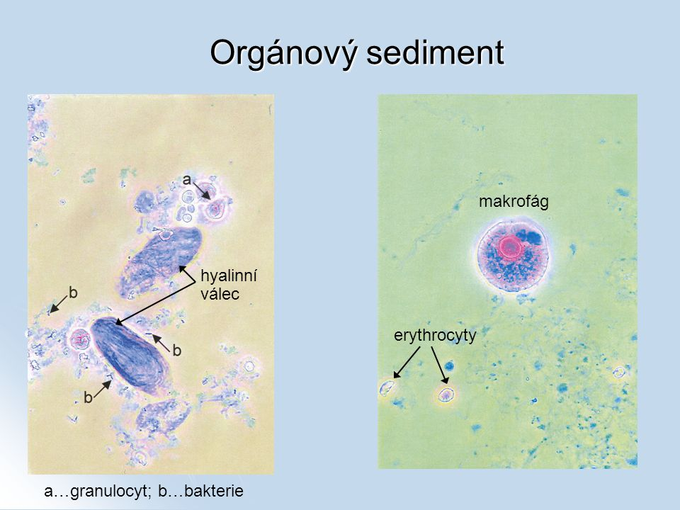 Orgánový sediment makrofág hyalinní válec erythrocyty
