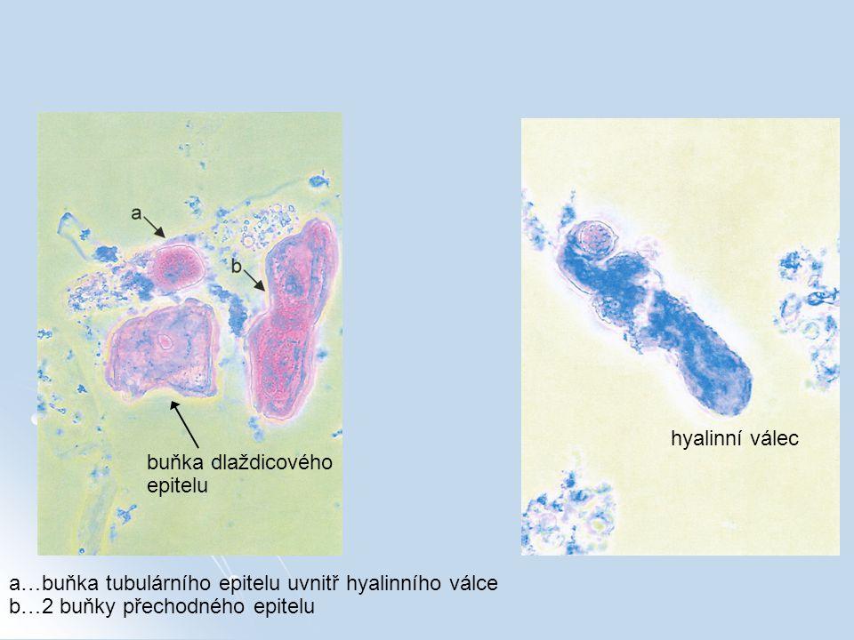 hyalinní válec buňka dlaždicového. epitelu. a…buňka tubulárního epitelu uvnitř hyalinního válce.