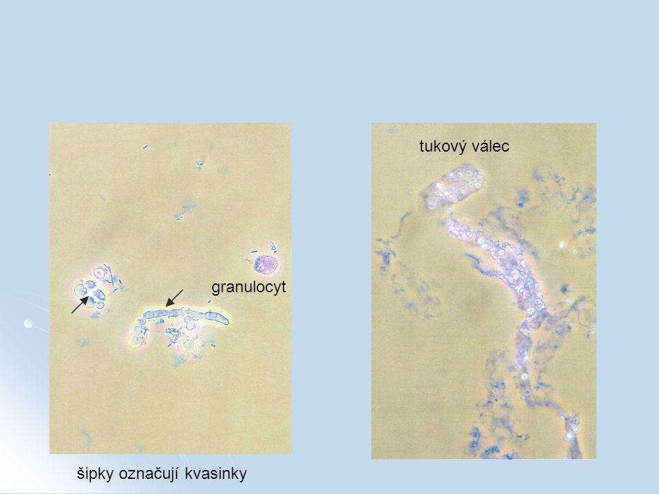 tukový válec granulocyt šipky označují kvasinky