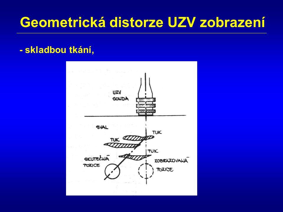 Geometrická distorze UZV zobrazení