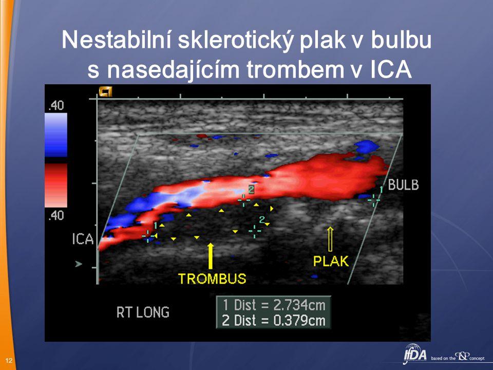 Nestabilní sklerotický plak v bulbu s nasedajícím trombem v ICA