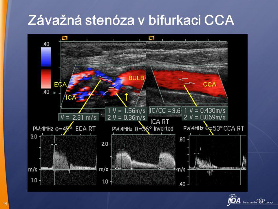 Závažná stenóza v bifurkaci CCA