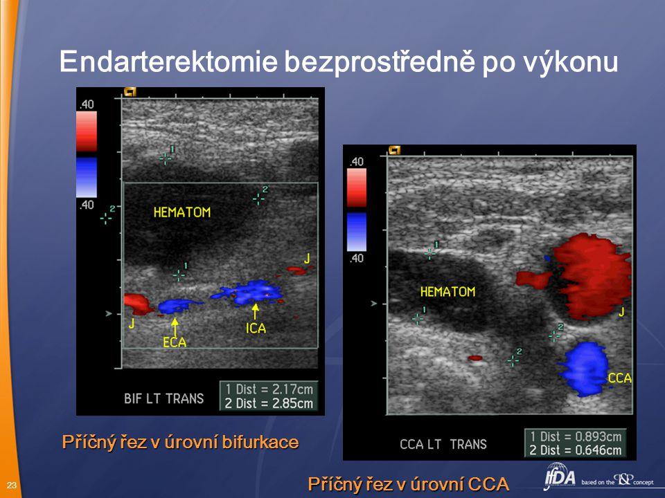 Endarterektomie bezprostředně po výkonu