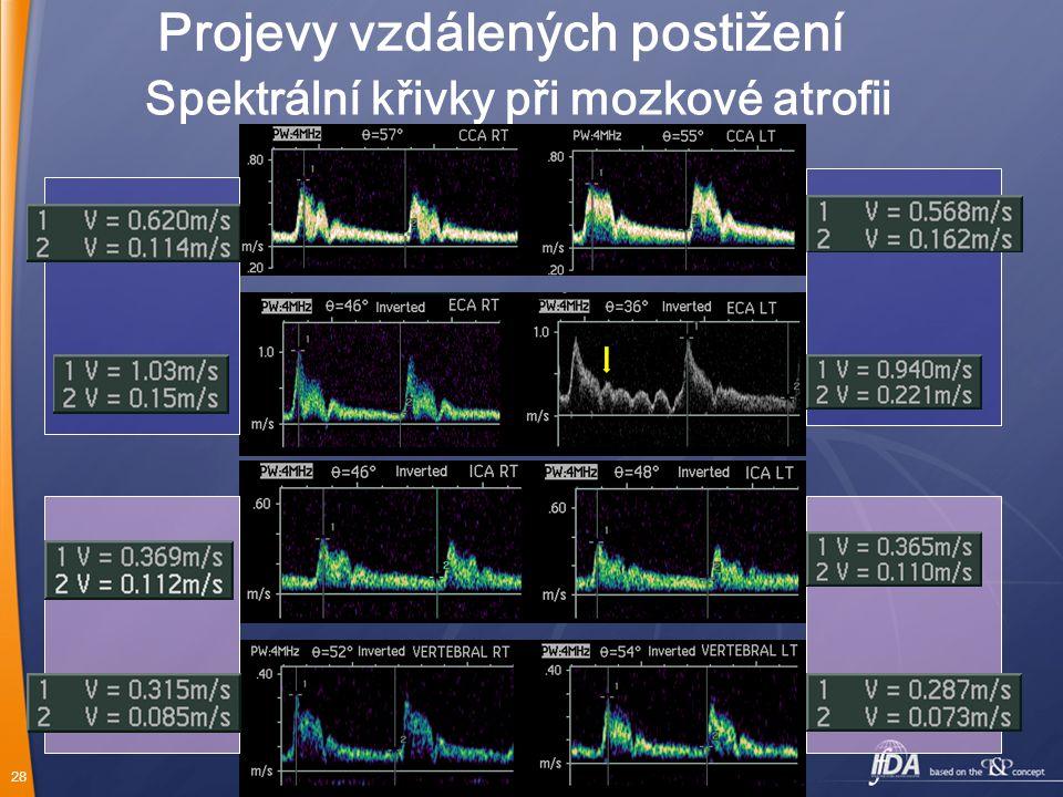Spektrální křivky při mozkové atrofii