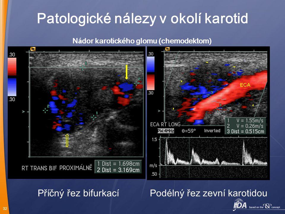 Nádor karotického glomu (chemodektom)