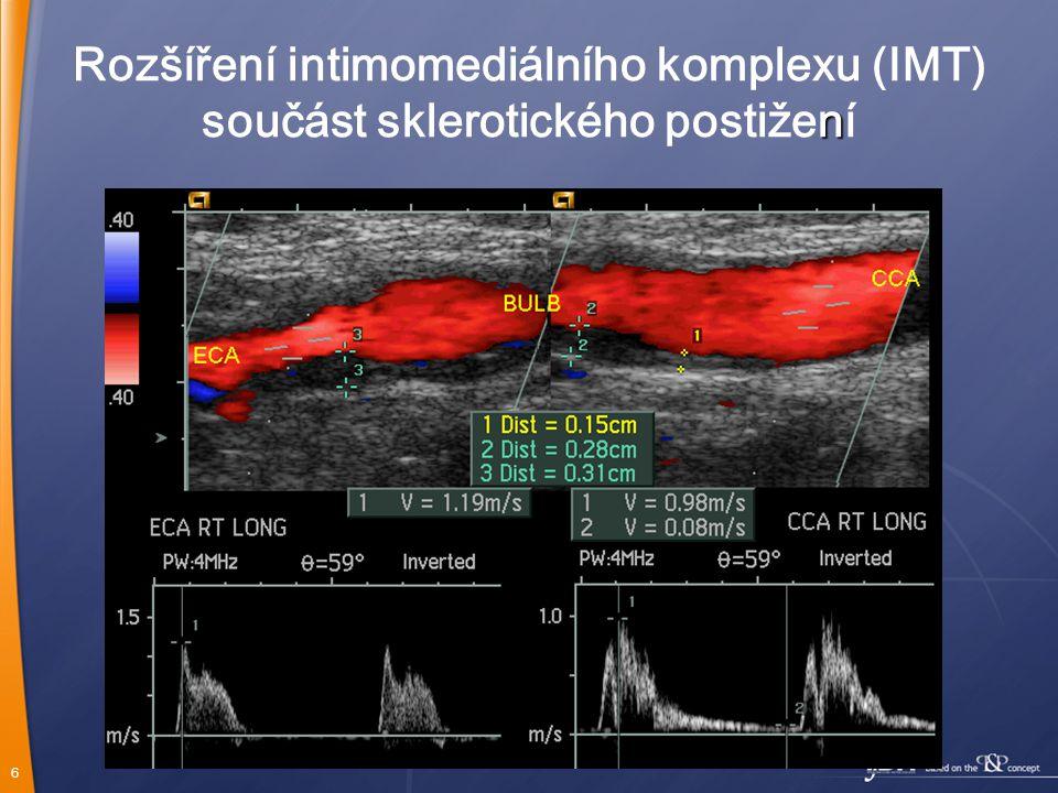 Rozšíření intimomediálního komplexu (IMT)