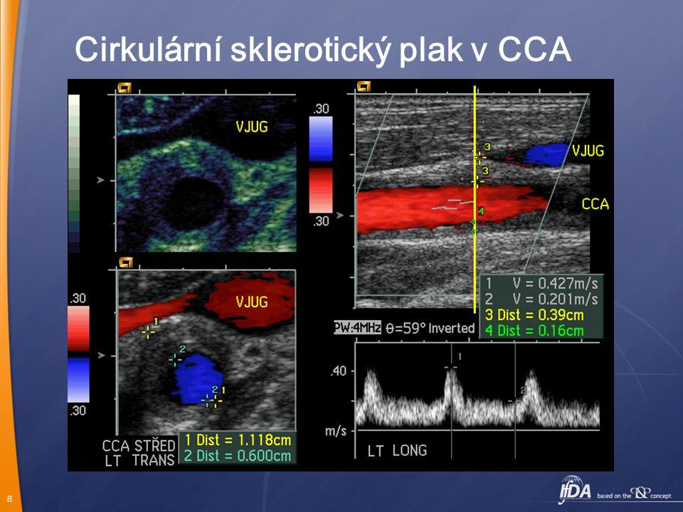Cirkulární sklerotický plak v CCA