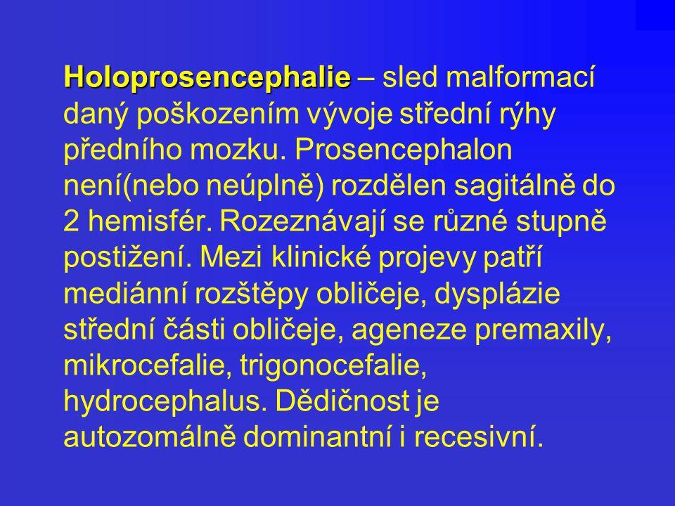 Holoprosencephalie – sled malformací daný poškozením vývoje střední rýhy předního mozku.