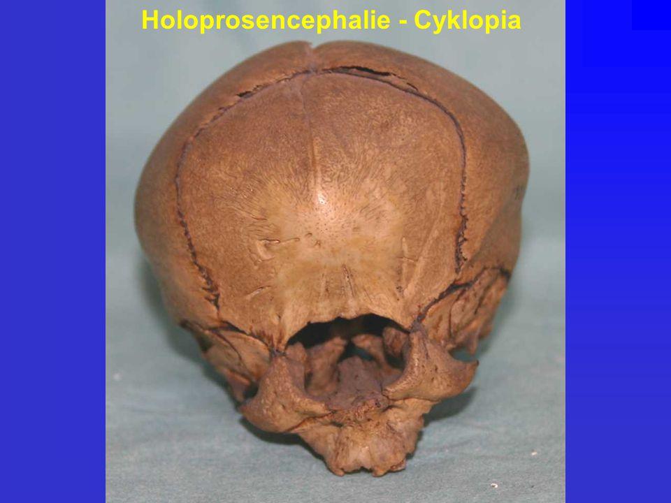 Holoprosencephalie - Cyklopia