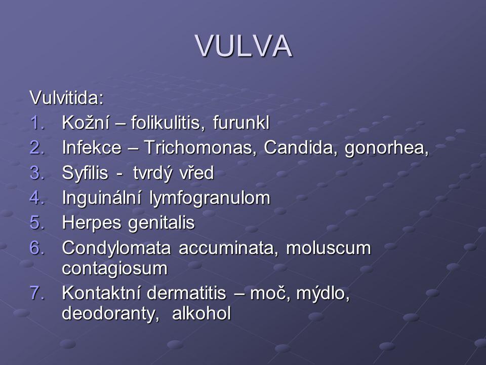 VULVA Vulvitida: Kožní – folikulitis, furunkl