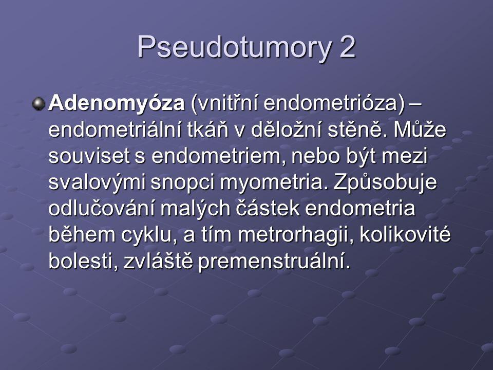 Pseudotumory 2