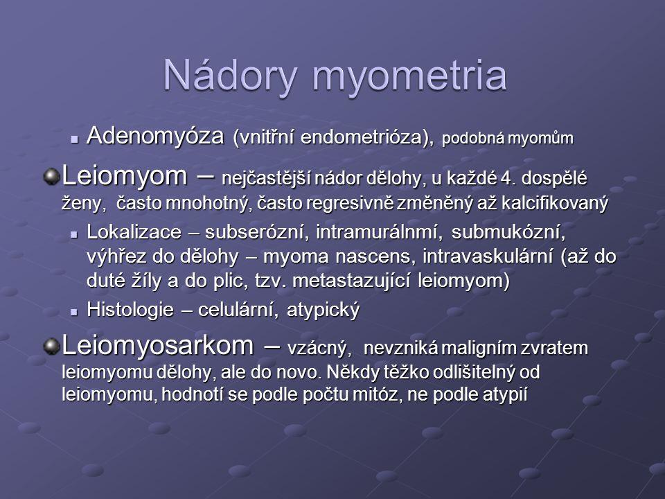 Nádory myometria Adenomyóza (vnitřní endometrióza), podobná myomům.