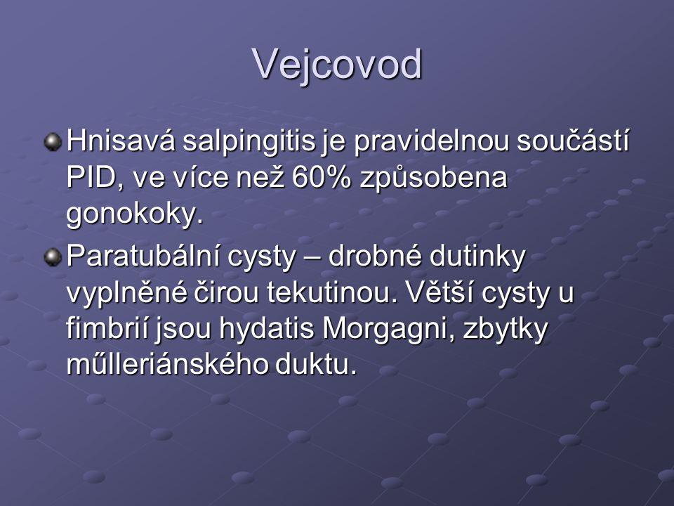 Vejcovod Hnisavá salpingitis je pravidelnou součástí PID, ve více než 60% způsobena gonokoky.