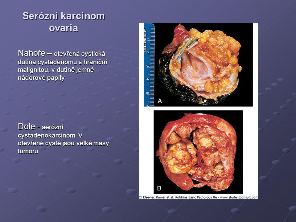 Serózní karcinom ovaria
