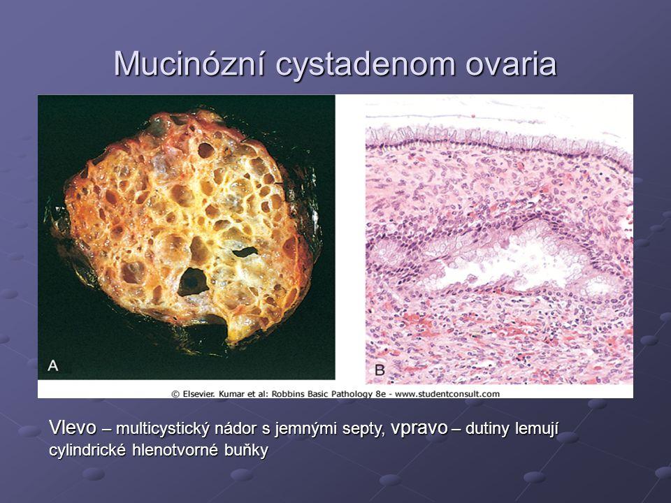 Mucinózní cystadenom ovaria