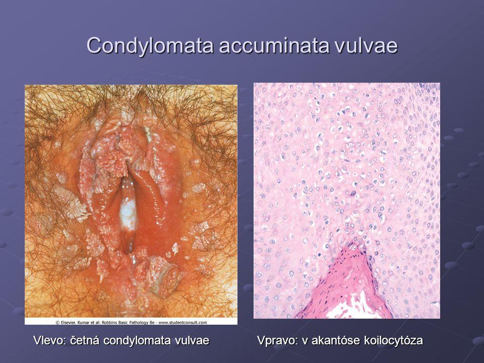 Condylomata accuminata vulvae