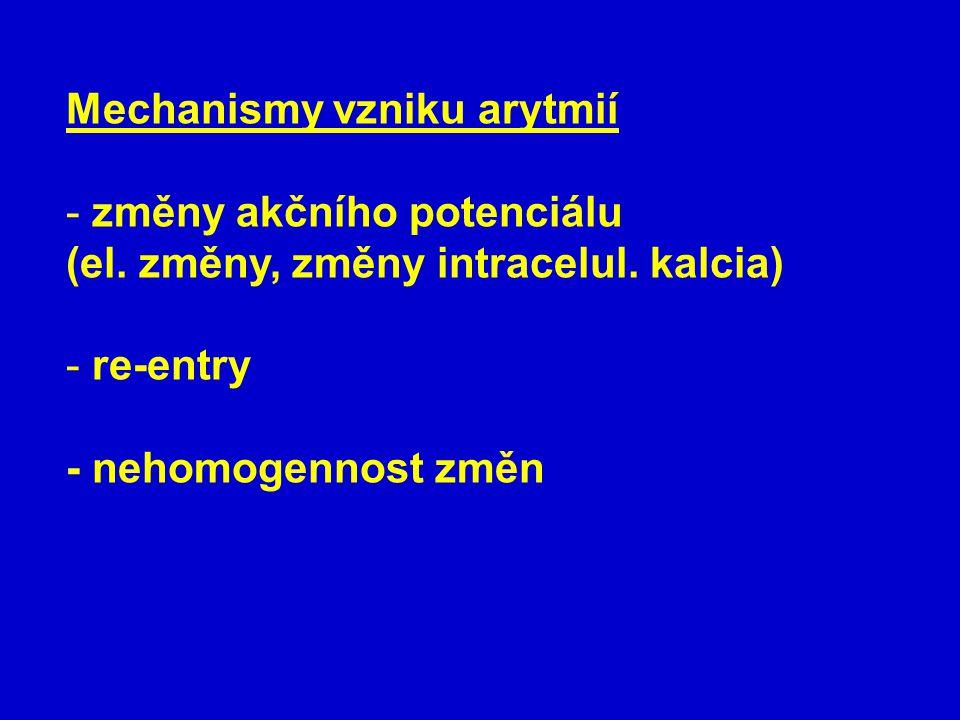 Mechanismy vzniku arytmií
