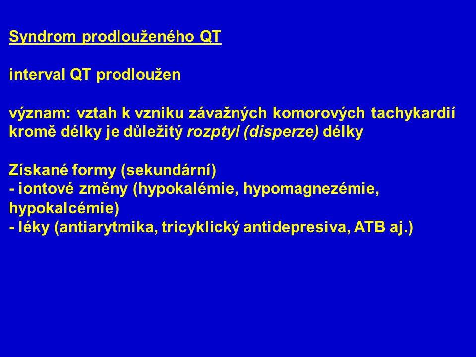 Syndrom prodlouženého QT