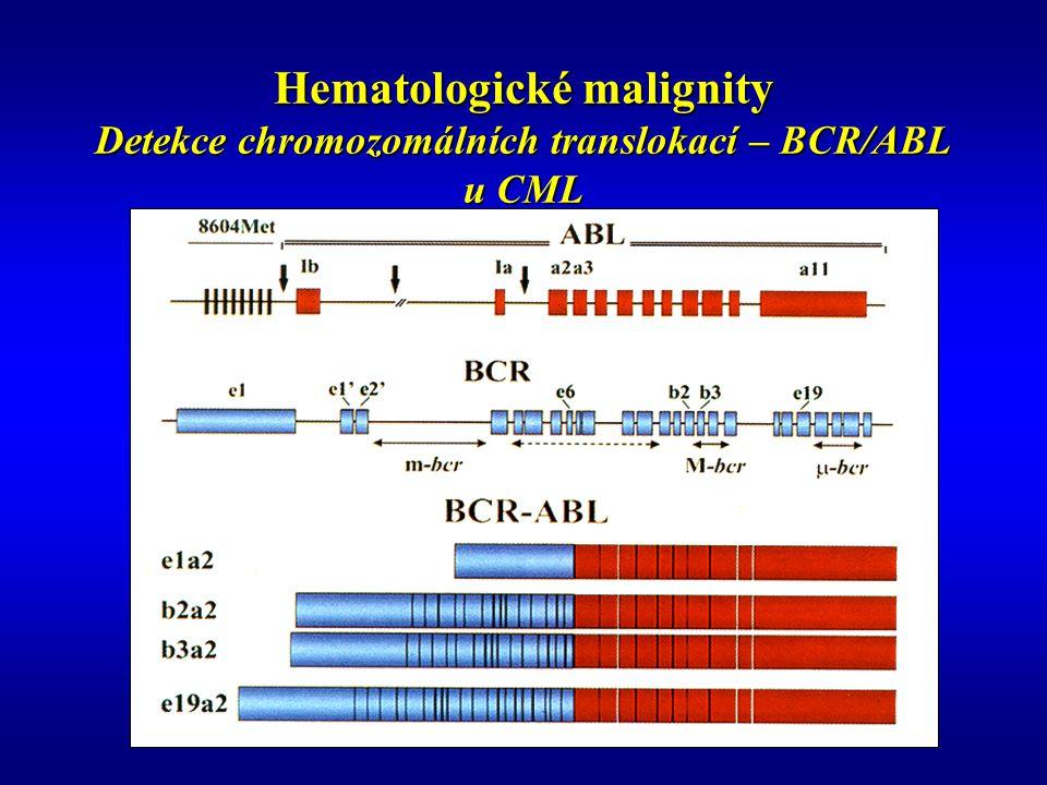 Hematologické malignity Detekce chromozomálních translokací – BCR/ABL u CML