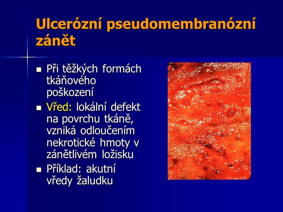 Ulcerózní pseudomembranózní zánět