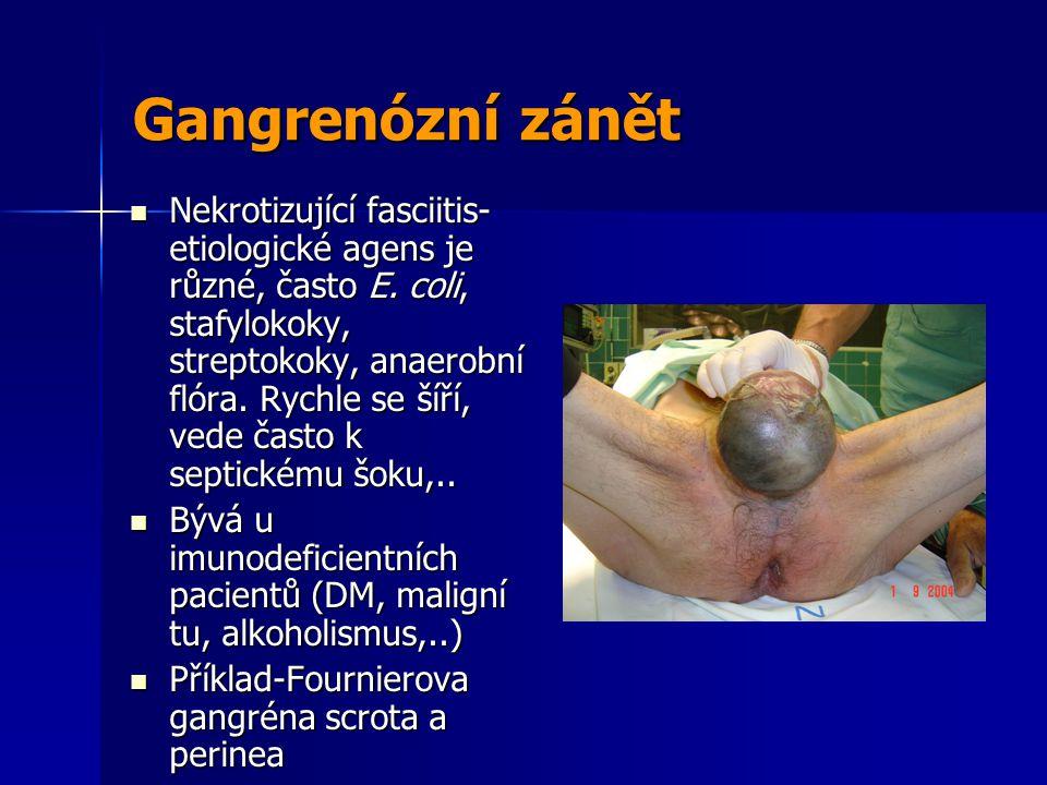Gangrenózní zánět