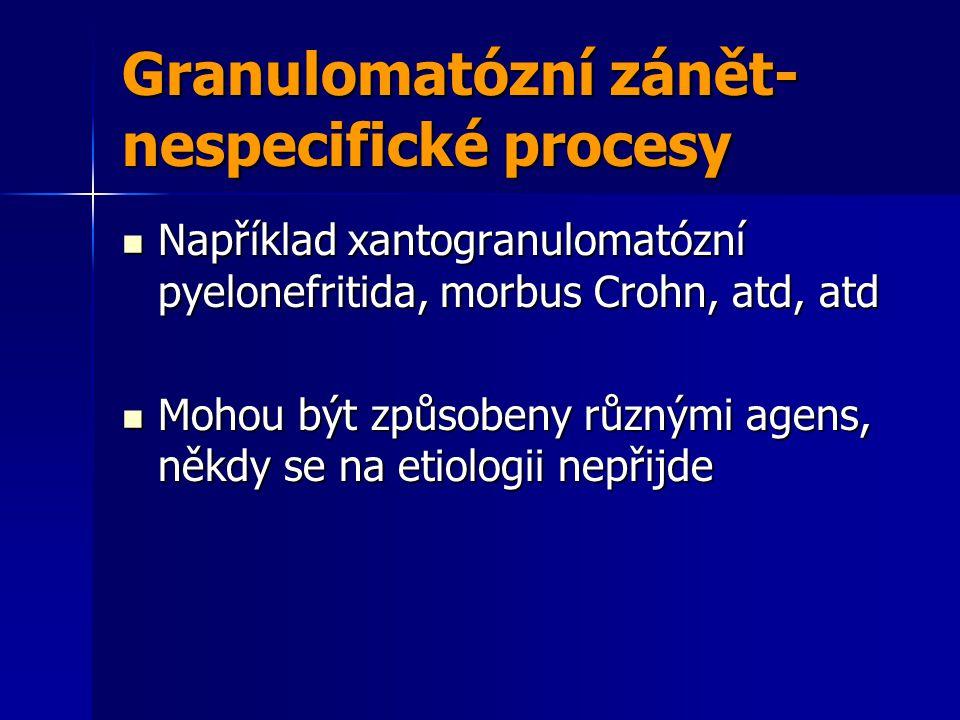 Granulomatózní zánět-nespecifické procesy