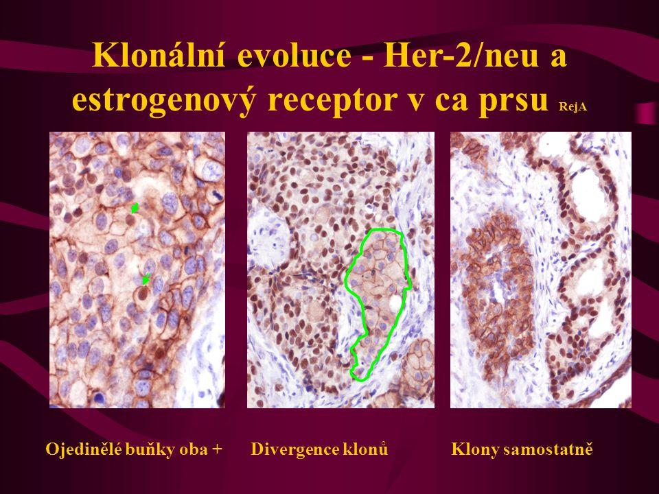 Klonální evoluce - Her-2/neu a estrogenový receptor v ca prsu RejA